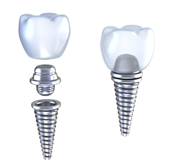 Rendered image of dental implants from Advanced Dental Associates in San Antonio, TX